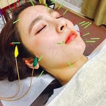 スキマ時間にしっかりお手入れ♡*美容鍼ショートコース*(20分) | コスモ鍼灸マッサージ治療院 | 当日予約・直前予約 ポップコーン