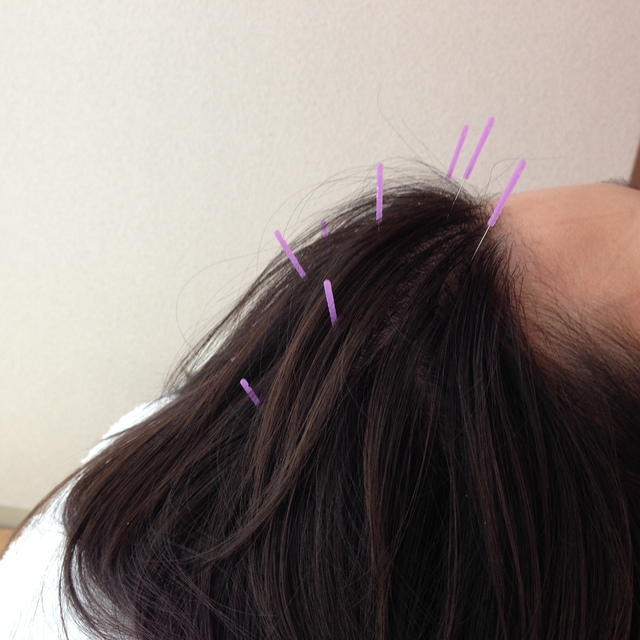 "Beauty acupuncture ""beauty Hari bi-ha-ri"" that does not sting to face ※ women limited ※ 45 minutes Course 