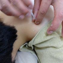 肩コリ鍼 | ひだまり鍼灸院整骨院 | 当日予約・直前予約 ポップコーン
