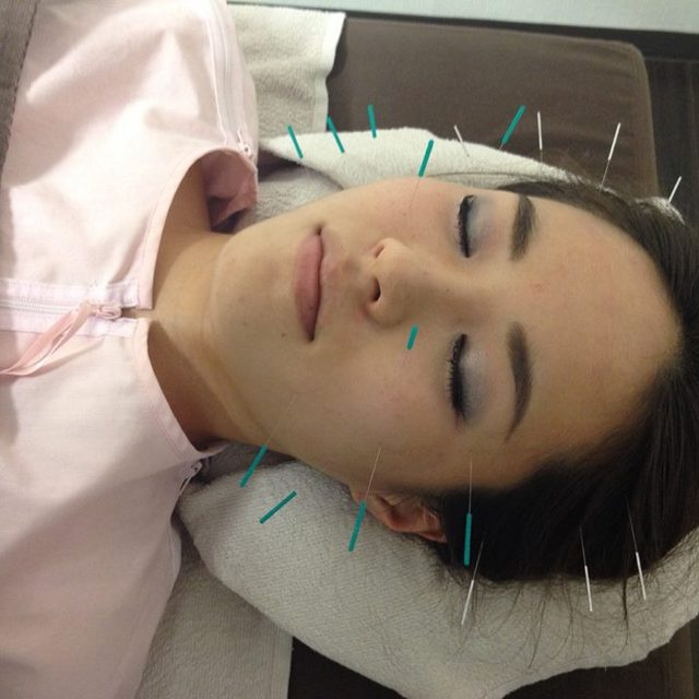 * Safe for the first time of the person * all staff national qualifications acquired! Facial acupuncture + jaw adjustment course 90 minutes | Health Hall Osteopathic Council Koen-dori Institute | Last-minute booking service Popcorn