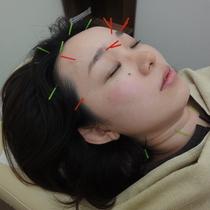 頭痛特化鍼  | ひだまり鍼灸院整骨院 | 当日予約・直前予約 ポップコーン