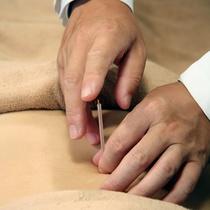 鍼40分コース(施術にはマッサージも含まれます・部位的疾患別の症状改善)  | ドクター・リウ鍼灸院 西新橋院 | 当日予約・直前予約 ポップコーン