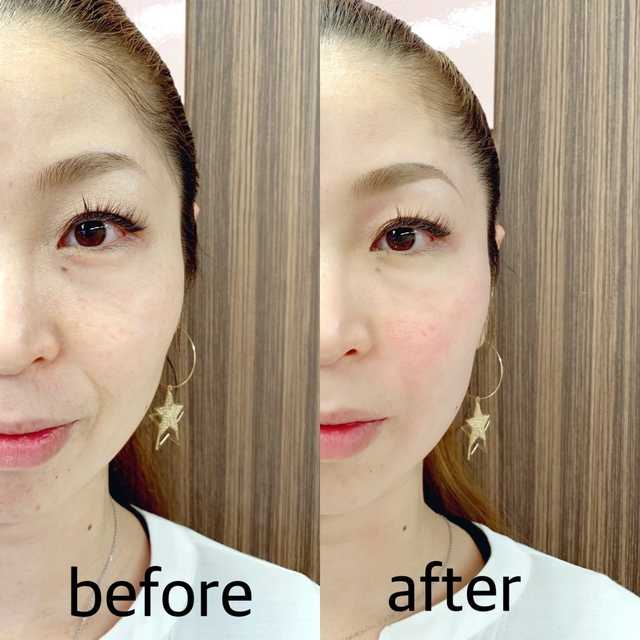 Popularity No.1 Small face of surprise! Face dissolution intensive course ★ Swelling also repels! Tighten the face line! | 【Small face facial】 salon de VIENNA (Vienna) | Last-minute booking service Popcorn