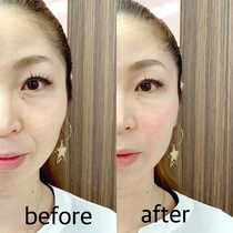 Popularity No.1 Small face of surprise! Face dissolution intensive course ★ Swelling also repels! Tighten the face line! | 【Small face】 salon de VIENNA (Viena) | Last-minute booking service Popcorn