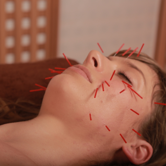 美容鍼灸 (60分) facial acupuncture (60min)