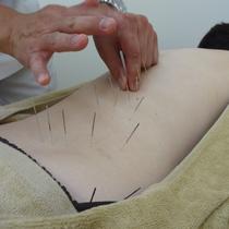 ギックリ腰鍼  | ひだまり鍼灸院整骨院 | 当日予約・直前予約 ポップコーン