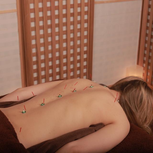 鍼灸治療(90分) Acupuncture(90min)