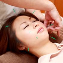 [初回限定]美容鍼60分コース | ゆう鍼灸院 | 当日予約・直前予約 ポップコーン
