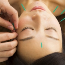 "Boast very popular !! ""first-60-minute course"" does not hurt !! to bear-wrinkle and drying cosmetic acupuncture ♪ cosmetic acupuncture + deep muscle therapy 
