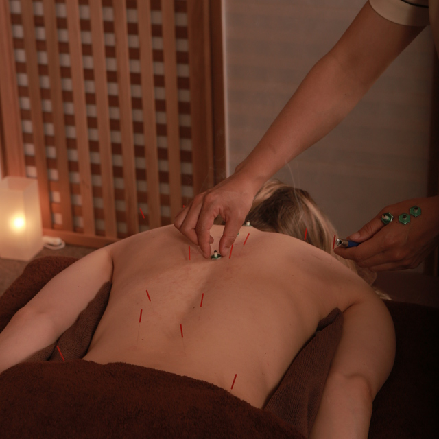 鍼灸治療(60分) Acupuncture(60min)