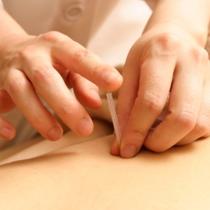 [女性限定]☆症状に向き合う☆長野式鍼灸治療(60分) | 弘はりきゅう治療室 | 当日予約・直前予約 ポップコーン