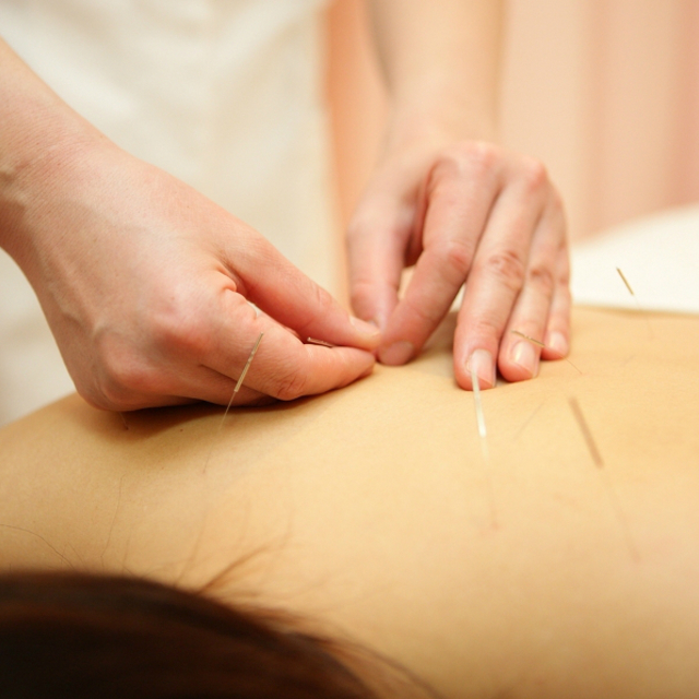 ☆ 1 No. popular ☆ not say painful, painful anymore !! * acupuncture systemic therapy * (60 minutes) | Cosmo clinic | Last-minute booking service Popcorn