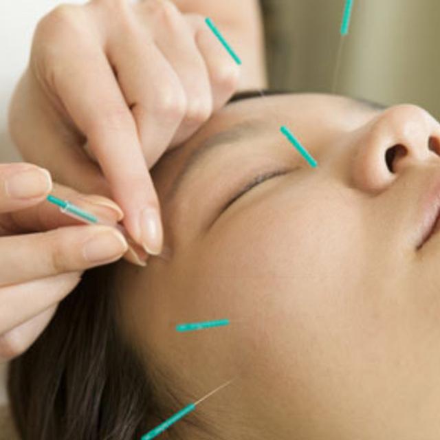 [美容若返りコース]全身調整(背中)+(顔)美容鍼 | 赤坂鍼灸院 | 当日予約・直前予約 ポップコーン