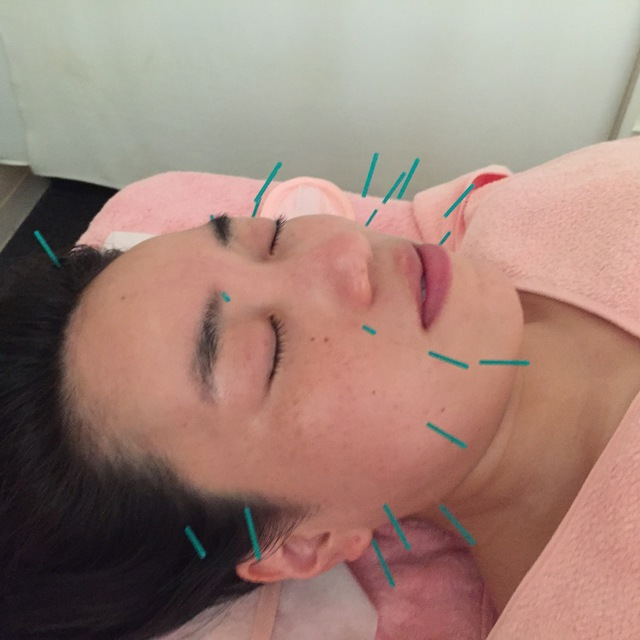 [Any number of times ◎] beauty acupuncture ®30 minutes ☆ trademark registered ♪ outing before the anti-aging! | Akyuria acupuncture clinic | Last-minute booking service Popcorn