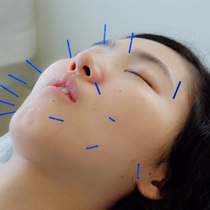 Beauty acupuncture basic 90-minute course to become firmly beautiful in the whole body | Makoto Hongo clinic | Last-minute booking service Popcorn