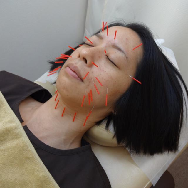 ヒアルロン酸美容鍼 | ひだまり鍼灸院整骨院 | 当日予約・直前予約 ポップコーン