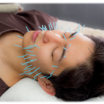 New-man limited] Beauty Acupuncture Special course | Gran clinic Tokyo | Last-minute booking service Popcorn