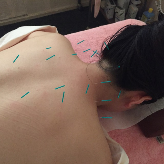 [Occasionally OK !!] Acupuncture and moxibustion treatment 60 minutes ☆ Effect on women's specific problems Batsugun ♪ ♪ | Akyuria acupuncture clinic | Last-minute booking service Popcorn