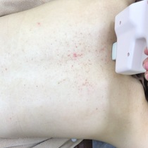 Back treatment course | keel beauty (Kiel Beauty Este) | Last-minute booking service Popcorn