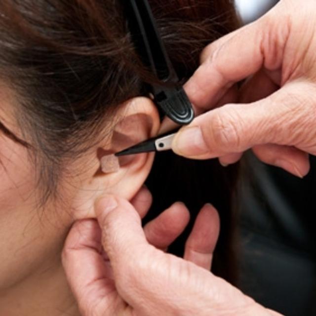 耳つぼ施術