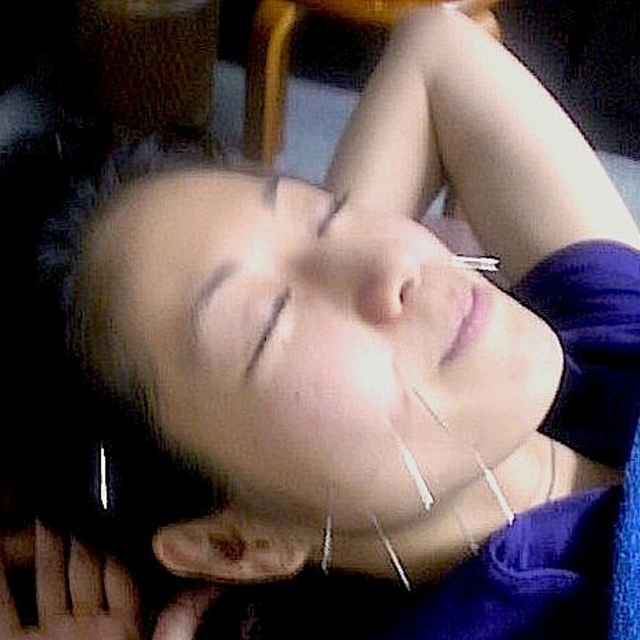 [This rejuvenation in 90 minutes / several tens of minutes !!] beauty acupuncture + systemic manipulative + Chiropractic course | Nakanosakaue clinic (Nakano Saka upper treatment in) | Last-minute booking service Popcorn