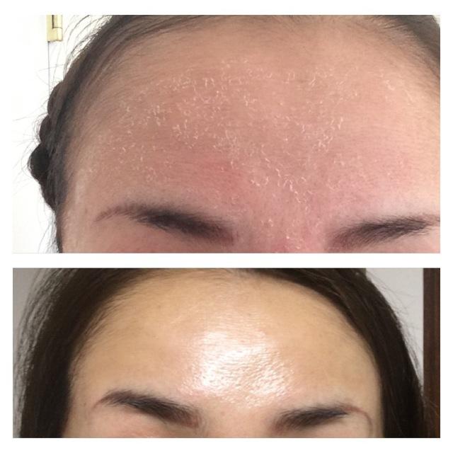 ボヌールエボーテハーブ療法 お顔・首3g+アフタートリートメント(結果重視の方に)