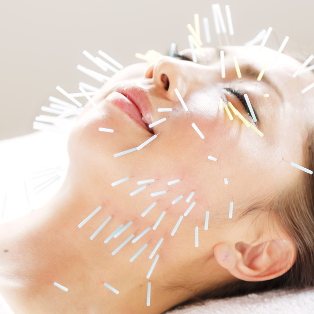 New and women limited] beauty acupuncture special course | Gran clinic Tokyo | Last-minute booking service Popcorn