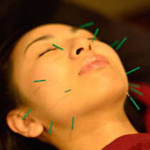 Facial acupuncture (facial acupuncture + oil massage) | Omotesando Pollux Osteopathic Council (Po lux Seiko Twin) | Last-minute booking service Popcorn