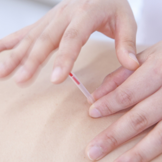 Acupuncture 60 minutes Course | Okubo Station acupuncture and moxa | Last-minute booking service Popcorn