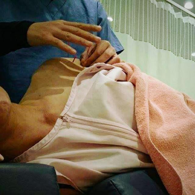 [新規・Popcorn限定] 男性可!美容鍼灸コース♪ | こま整骨院・スポーツ鍼灸院(鍼灸) | 当日予約・直前予約 ポップコーン