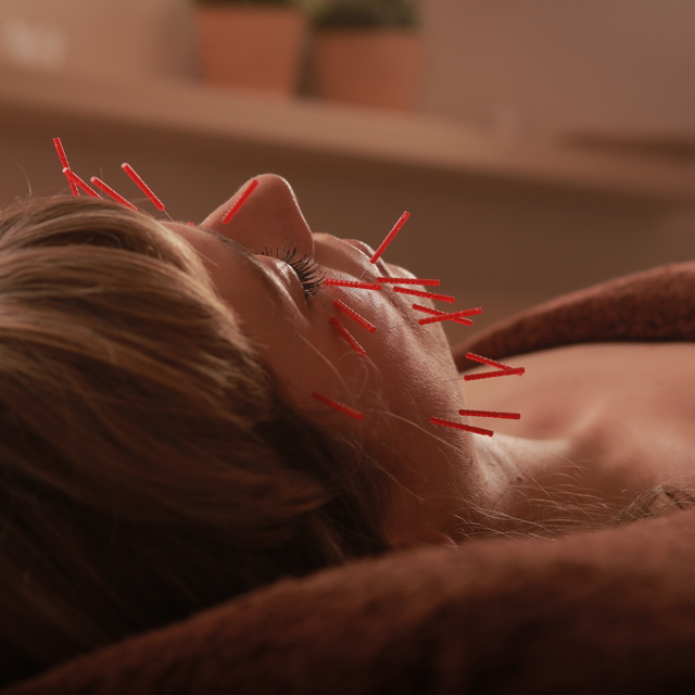 美容鍼灸 (90分) facial acupuncture (90min)