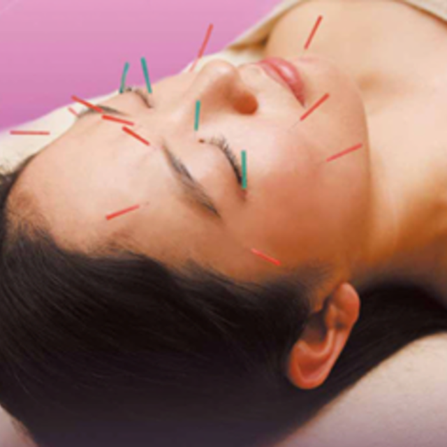 [New and trademark registered !!] beauty acupuncture ®60 minutes ☆ dry measures! Moisturizing effect ◎ ♪ | Akyuria acupuncture clinic | Last-minute booking service Popcorn