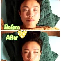 【撮影モデル】骨と表情筋から即効小顔★むくみ、たるみ、シワに劇的アプローチ! | 美容矯正PLUME | 当日予約・直前予約 ポップコーン