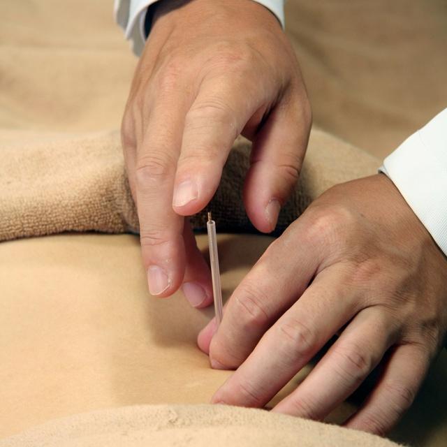 鍼80分コース(施術にはマッサージも含まれます・全身の疲労・疾患別のお悩み改善) | ドクター・リウ鍼灸院 西新橋院 | 当日予約・直前予約 ポップコーン