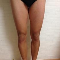 [新規・男性限定]VIO脱毛 | メンズ脱毛 Alonso(アロンソ) 恵比寿 | 当日予約・直前予約 ポップコーン