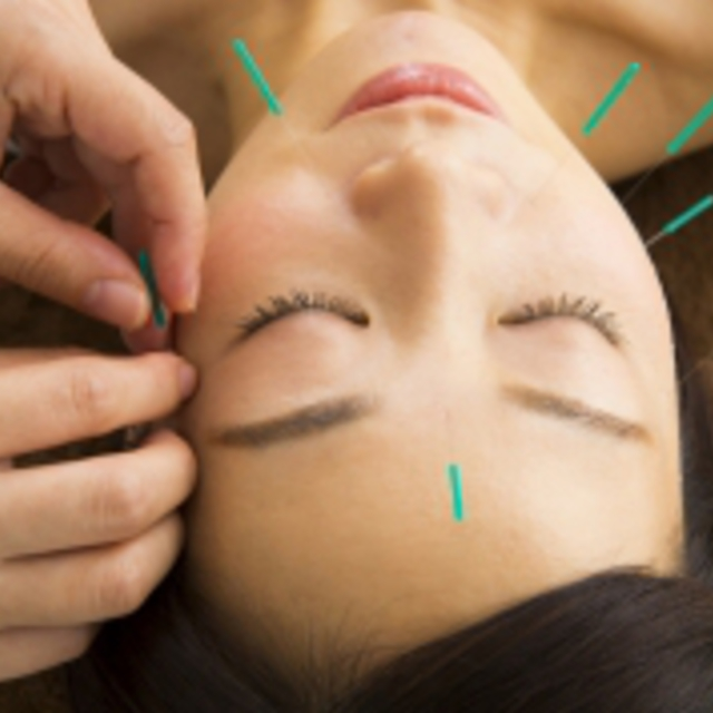 "Boast very popular !! ""60 minutes course"" does not hurt !! to bear-wrinkle and drying cosmetic acupuncture ♪ cosmetic acupuncture + deep muscle therapy 