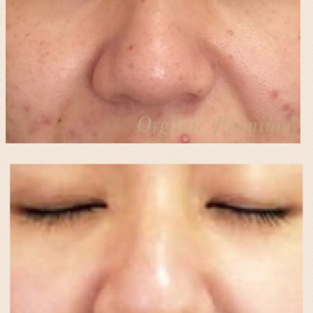 [Men and women your new] pores dirt, the skin problems of acne such as radically improved! The next generation of facials | coco garden | Last-minute booking service Popcorn