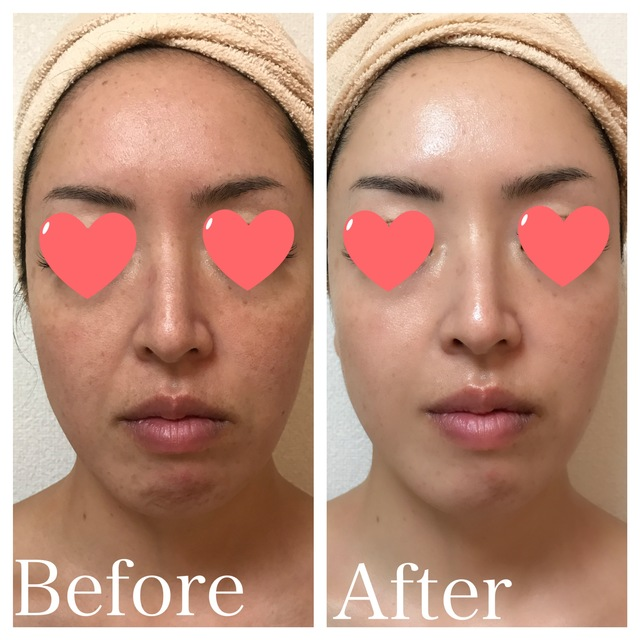 """Pore plump"" Lift up shiny skin facial 90 minutes ¥ 22000 → ¥ 10800 