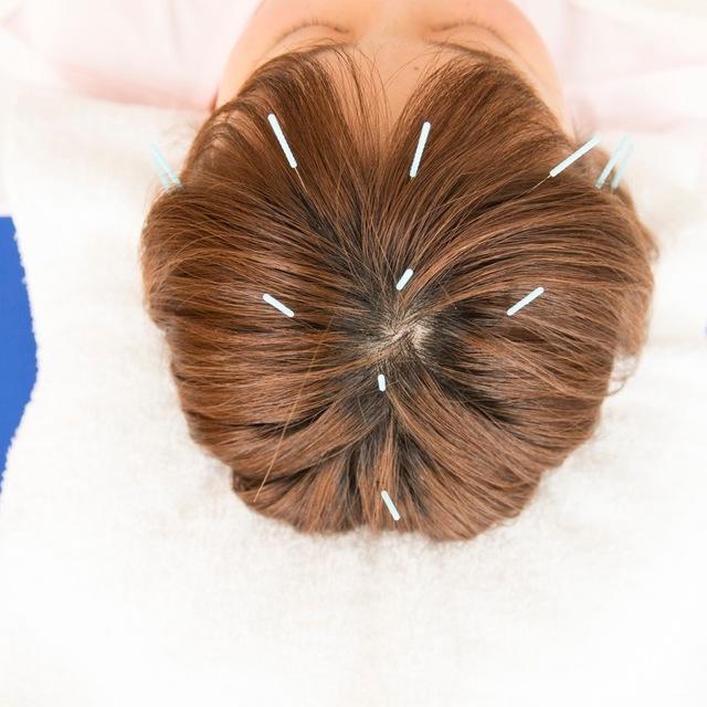 トーリの花粉症ケア:カッピング+体鍼+頭皮鍼※女性限定※60分コース | はり・きゅう・マッサージ taulli (トーリ代官山)  | 当日予約・直前予約 ポップコーン