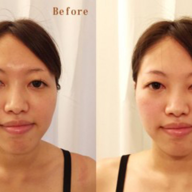 Small face correction / cosmetic treatment 80 minutes | Finefield Omotesando | Last-minute booking service Popcorn