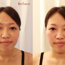 Small face correction / cosmetic treatment 80 minutes | Finefield Omotesando | Last-minute booking service Popcorn