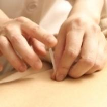 鍼灸 30分 2500円 | 健康オフィスJapan|国家資格保有者が施術 | 当日予約・直前予約 ポップコーン