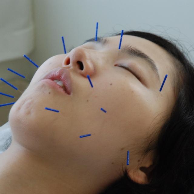 身体全体で美しくなる美容鍼ショート70分コース | 本郷まこと治療院 | 当日予約・直前予約 ポップコーン