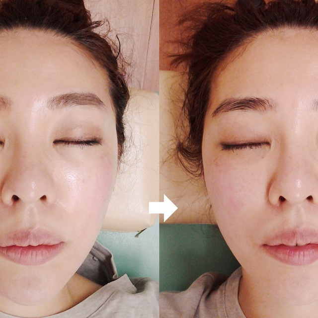 Small face correction / cosmetic treatment & Indiva 170 minutes (180 minutes) | Finefield Omotesando | Last-minute booking service Popcorn