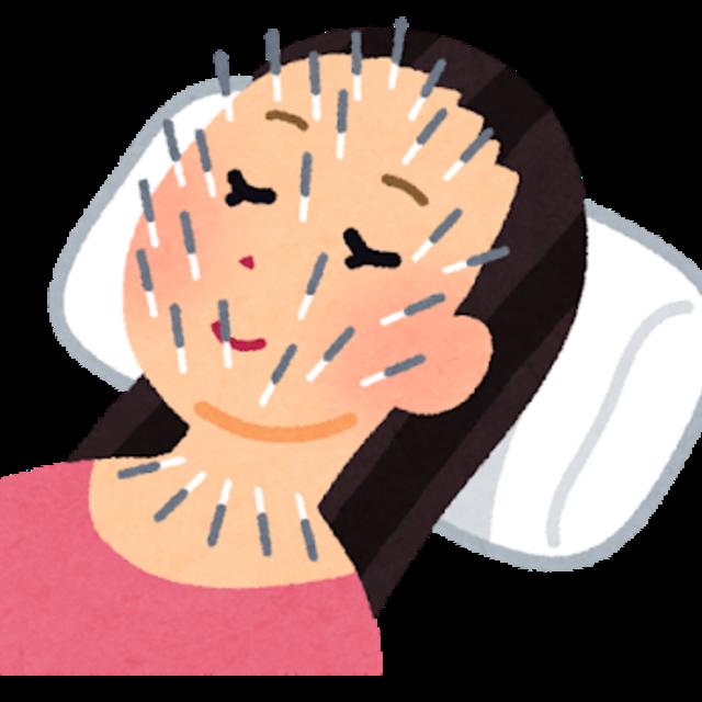 北川式美容鍼灸(顔面部のみ:100本まで)
