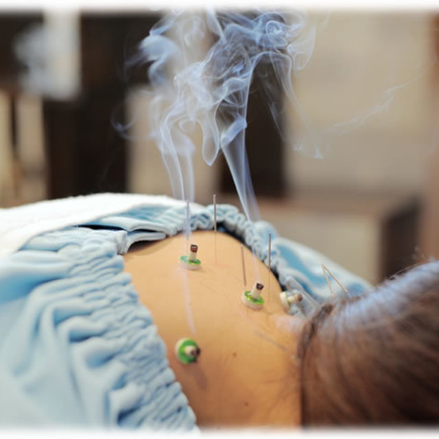 [New Limited] Beauty Acupuncture Moxibustion + Acupuncture and Moxibustion Course 90 minutes <1 most popular> | Gran clinic Tokyo | Last-minute booking service Popcorn