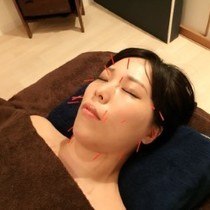【小顔効果、肌質改善、リフトアップ】美顔鍼 40分 | 美容鍼エステ LANZA | 当日予約・直前予約 ポップコーン