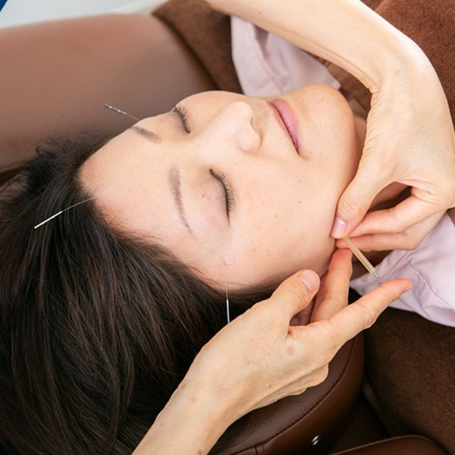 Beauty Acupuncture | KOKOKARA Tachikawa Kitaguchi store | State qualification holder performs treatment | Last-minute booking service Popcorn