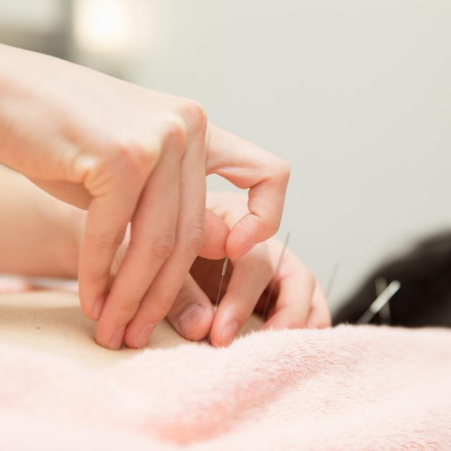 【全員】鍼治療 | ANTS(アンツ)鍼灸整体院 | 当日予約・直前予約 ポップコーン