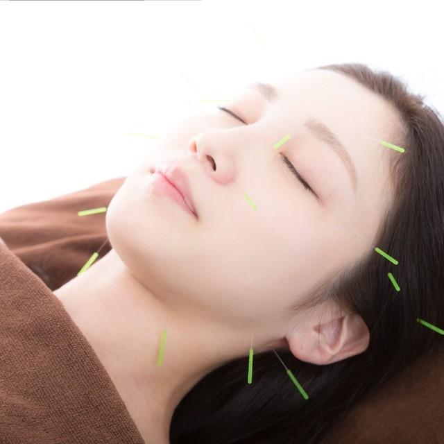 美容鍼(顔のはり)/指圧マッサージ60分セット